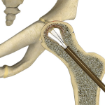 Core Decompression for Avascular Necrosis of the Hip